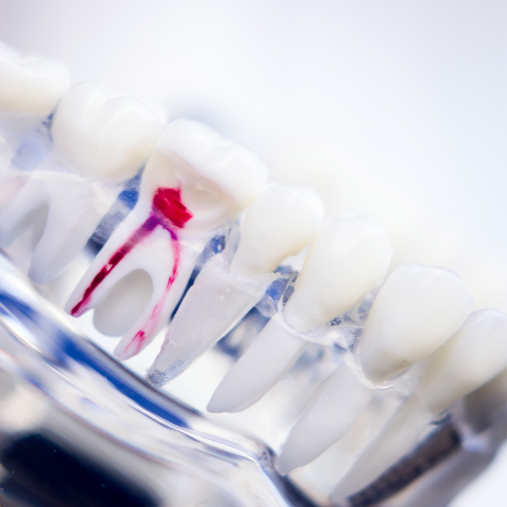Endodontologie Zahnarztpraxis Implantate Ammersee